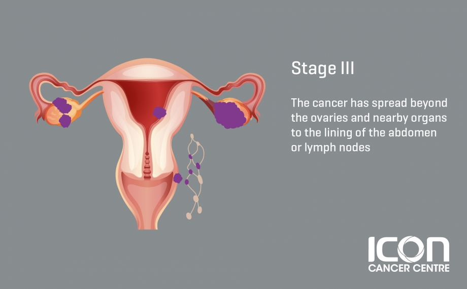 Ovarian Cancer Signs Symptoms Icon Centre Singapore