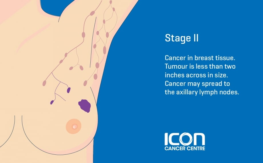 Breast Cancer Types Stages Icon Cancer Centre Singapore